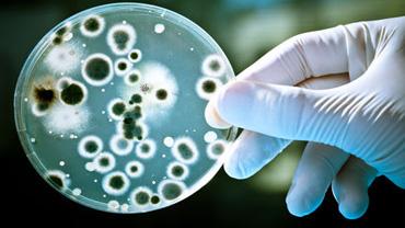 Automatización Bacterilología